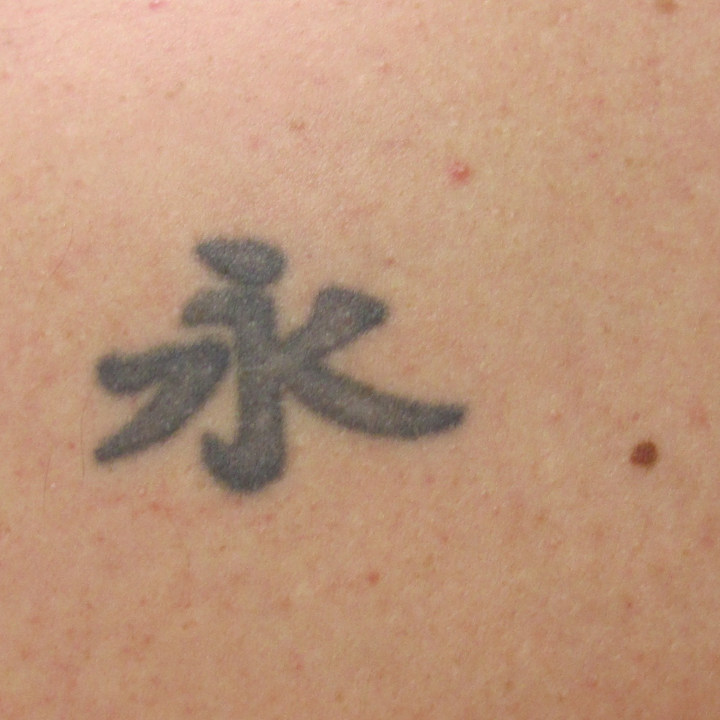 before complete tattoo removal